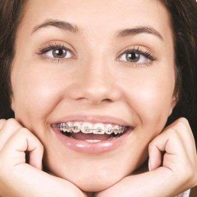 ortodoncia-sonrisas-ok900x600