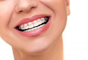 Una de las soluciones para cerrar estos espacios interdentales es la ortodoncia.
