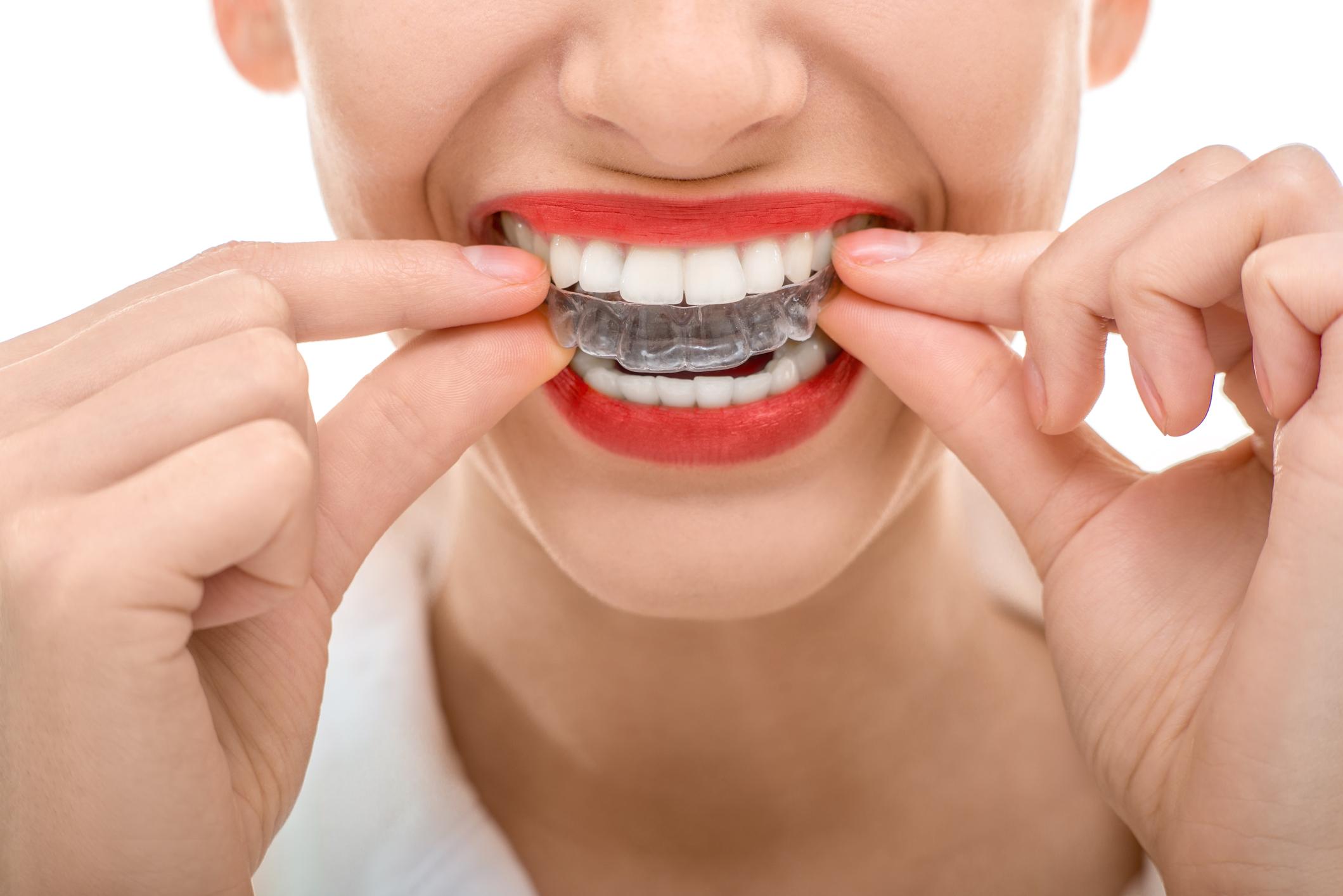 lavar férulas ortodoncia invisible