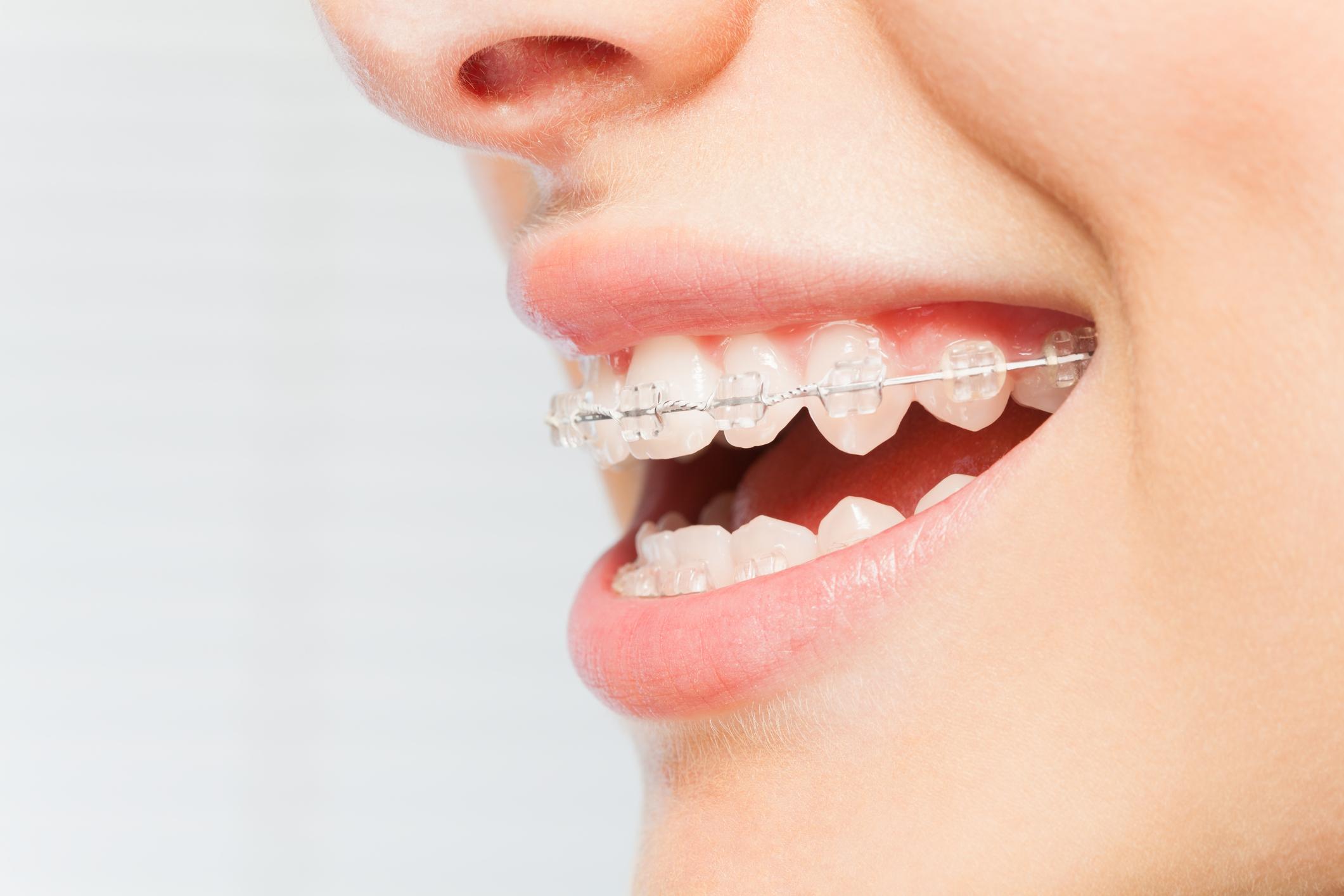 ortodoncia en Alcorcón, Móstoles y Fuenlabrada